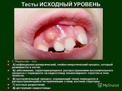 Периостит зуба нижней и верхней челюсти серозный, гнойный