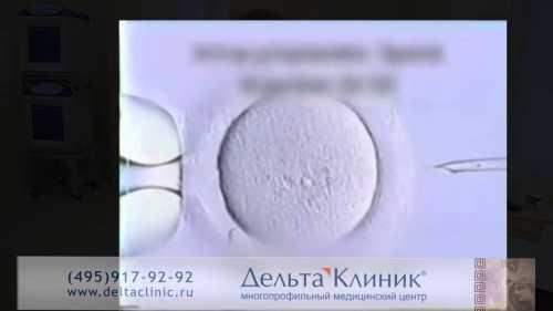 Важен и процесс отбора подходящего сперматозоида, он осуществляется эмбриологом при предельном увеличении микроскопа в раз