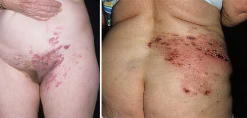 Часто у таких больных развивается опоясывающий лишай с рас пространным диссеминированным поражением кожи, напоминающий по клинике ветряную оспу